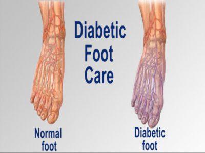 Dr. Amit Naghate - Diabetic foot treatment in Aurangabad